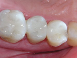 Teeth With Dental Fillings At Cope Dentistry