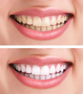 cosmetic dentistry teeth bleaching