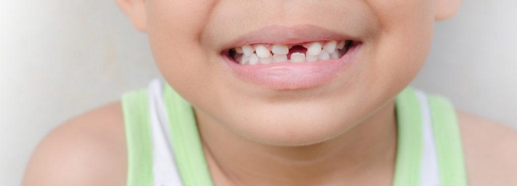 children's dental exam and checkup